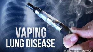Vaping-lung-disease-MGN